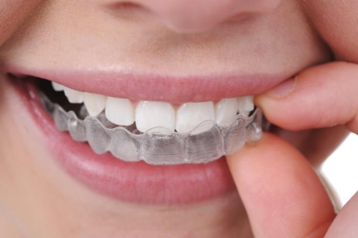 digrignare-i-denti-FILEminimizer